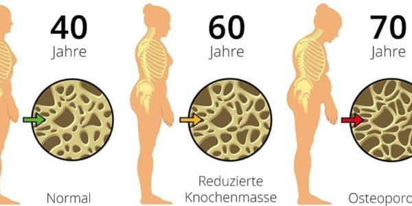 osteoporose_01